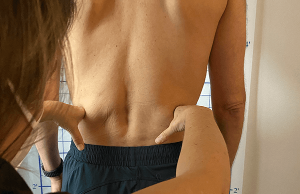 Physical Therapy Pelvis Assessment at Myofascial Healing Center Juno Beach